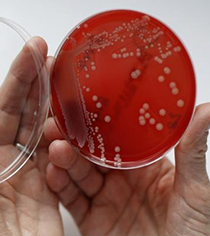 Tata firm ready with tech to reverse antibiotic resistance